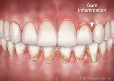 With good oral hygiene you keep your teeth, molars and gums healthy. You thereby prevent inflamed gums (gingivitis and periodontitis) and you promote their healing. But how do you know if your gums are healthy? And can you recognize inflamed gums? Gum Health, Oral Health, Swollen Gum, Gum Inflammation, Teeth Whitening Procedure, Heal Cavities, Dental Problems, Healing, Health