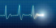 Um batimento cardíaco irregular pode ser um sinal de que você está no caminho rápido para a demência, sugere um novo estudo.