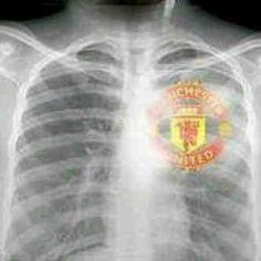 Lol that must be an X-ray of my husband! Football Memes, Football Team, Man Utd Fc, Manchester United Team, Bicycle Kick, Sir Alex Ferguson, Soccer Quotes, Fall Wallpaper, Man United