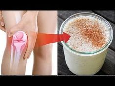 Watch This Video Proven Homemade Remedies for Arthritis and Joint Pain Ideas. Staggering Homemade Remedies for Arthritis and Joint Pain Ideas.