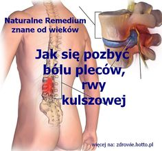 zdrowie.hotto.pl-jak-sie-pozbyc-bolu-plecow-rwy-kulszowej-domowy-sposob Health Diet, Health Fitness, Oils For Sinus, Traditional Chinese Medicine, Sciatica, Natural Medicine, Natural Cures, Cholesterol, Back Pain