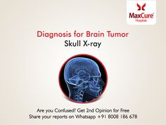 Diagnosis for brain tumor Get 2nd opinion for free Visit: https://maxcurehospitals.com/ #MaxCureHospitals #MaxCure #BrainTumor #SkullXray #FreeSecondOpinion #Diagnosis #ConsultExperts #ConsultOurDoctors #Hyderabad
