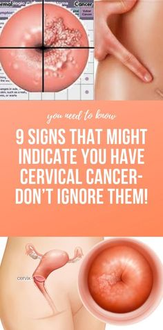 Health Discover 9 Signs That Might Indicate You Have Cervical Cancer- Dont Ignore Them! Health And Fitness Articles, Health Tips For Women, Health And Beauty Tips, Health Advice, Fitness Diet, Health Fitness, Wellness Fitness, Fitness App, Health Diet