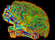 https://flic.kr/p/C5HwSr | SumaLateral Whole Brain Image | Multi-color image of whole brain for brain imaging research. This image was created using a computer image processing program (called SUMA), which is used to make sense of data generated by functional Magnetic Resonance Imaging (fMRI).  For more information, see: fmrif.nimh.nih.gov/course/2015/06_Ziad_20150617   Credit:  National Institute of Mental Health, National Institutes of Health