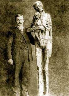 Giant Human Skeletons