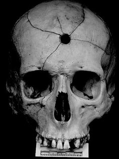 Great photo. Year unknown. The detail and shadowing allowed by a longer exposure time makes the photo look old to me. But my husband argues that the ruler the skull is sitting upon was initially created to measure speed using moving film and also the bleached paper suggests the photo was taken within the last 50 years. Discuss and report back!
