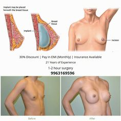 Gynecomastia surgery cost in Hyderabad, 09 Male breast surgery treatment Pay-in-monthly starting price cost and insurance and cashless treatment gynecomastia surgery Tricyclic Antidepressant, Top Hospitals, Extra Skin, Plastic Surgery Procedures, Female Hormones, Tummy Tucks, Hormone Imbalance, Hyderabad