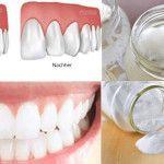 Wenn du ein Loch in einem deiner Zähne entdeckst, könntest du mit folgender Rezeptur versuchen, deine Zähne nachwachsen zu lassen. Unser Körper ist pausenlos damit beschäftigt, sich selbst zu erneuern, zu reparieren und altes Material gegen neues auszutauschen. Jeden Tag werden im menschlichen Organismus etwa 500 Milliarden altersschwache Zellen abgebaut, wenn man sich schlecht ernährt. …