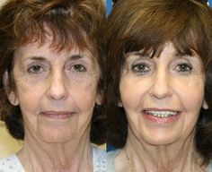 How You Can Receive A Facelift Without Surgery Performing Straightforward Face Renewal Gymnastics