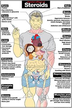 "Harmful Effects of Steroids 24"" X 36"" Laminated Poster He..."