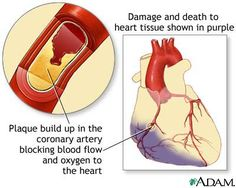 A heart attack or acute myocardial infarction (MI) occurs when one of the arteries that supplies the heart muscle becomes blocked. Blockage may be caused by spasm of the artery or by atherosclerosis with High Cholesterol Causes, Lower Cholesterol Naturally, Medical Surgical Nursing, Nursing Diagnosis, Diabetes, Parts Of The Heart, Myocardial Infarction, Nursing Care Plan, Heart Attack Symptoms