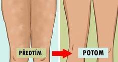 Přestože celulitida není nebezpečná, vyvolává rozpaky u celé řady lidí. // Tento nepříliš nehezký povrch kůže se vytváří, když tuk tlačí proti pokožce a vytváří důlek. Někteří lidé si spojují celulitidu s nadváhou, ale ne vždy je tomu tak. Hubnutí někdy pomůže odstranit celulitidu, a