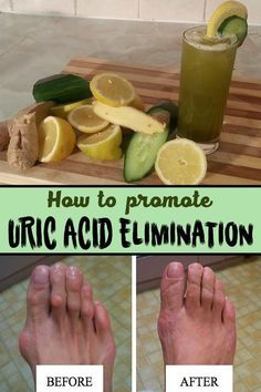The juice that helps eliminating uric acid Ingredients: 1 medium sized cucumber; 2 pieces of celery; 1 slice of lemon; Mode of preparation: Wash cut them and blend the ingredients. Drink the juice obtained once or twice a Natural Home Remedies, Natural Healing, Herbal Remedies, Health Remedies, Arthritis Remedies, Arthritis Hands, Gout In Hands, Bunion Remedies, Rheumatoid Arthritis