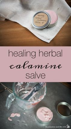 Healing Herbal Calamine Salve- Herbal Salves are thickened ointments that are used to soothe various skin problems, depending on the herb or plant that the salve was made from. They can treat chapped hands, wounds, mild burns, bites, stings, rashes, boils, acne and inflammation. To make a basic salve, all you need is an infused oil, beeswax and some essential oil.