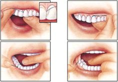 Manual Tooth Brushing and Flossing Technique – Dental Care Dental Sedation, Sedation Dentistry, Implant Dentistry, Cosmetic Dentistry, Dental Implants, Dental Veneers, Dental Braces, Family Dental Care, Preventive Dentistry