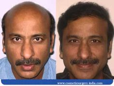 subu hair transplant from bald men to get hairs back with treatment.
