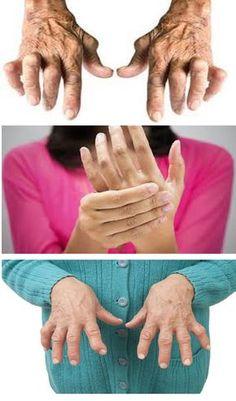 Feeling Achy All Over? You Could Have Rheumatoid Arthritis