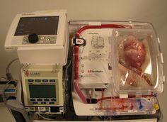 Il y a pénurie d'organes. Depuis plusieurs années, le nombre de demandeurs augmente plus vite que celui des donneurs, et le décalage ne cesse de s'accroître. Pour inverser la tendance, l'Agence de biomédecine a donc décidé d'autoriser le prélèvement d'organes « à cœur arrêté ». Cliquez sur la photo pour lire l'article  Greffe d'organes : les prélèvements « à cœur arrêté » autorisés