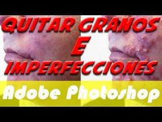 Quitar Granos//Imperfecciones con Adobe Photoshop - http://solucionparaelacne.org/blog/quitar-granosimperfecciones-con-adobe-photoshop/