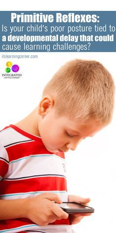 Primitive Reflex: Poor Posture Shows Signs of Learning Delays from Retained STNR Learning Tips, Kids Learning Activities, Sensory Activities, Infant Activities, Motor Activities, Sensory Rooms, Sensory Play, Vision Therapy, Ot Therapy