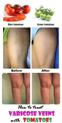 Get rid of varicose veins with tomatoes - Varices - Enlarged or twisted veins natural treatment