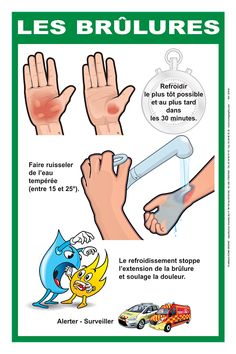 Science infographic and charts Editions IconeGraphic - Premiers Secours, secourisme, sapeurs pompiers Infographic Description Editions IconeGraphic - First Aid For Kids, Associates Degree In Nursing, French Practice, Survival Life Hacks, Self Defense Techniques, Nursing Notes, Band Aid, Nurse Life, Kids Health