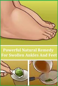 The Most Powerful Natural Remedy For Swollen Ankles And Feet ! Many different factors can cause inflamed feet and ankles such as pregnancy, kidney failure, heart deficiency, and issues with blood vessels, heat, hormone disorders and few more.