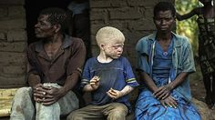 Stop Ritual Murders Of People With Albinism | Amnesty International NZ