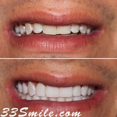 Happy Monday! We just completed this case of prepless veneers. A total of 18 teeth.  #drjamsmiles #33Smile .  . All photos and video of patients are of our actual patients.  All media is the  of Cosmetic Dental Associates.  Any use of media contained herein is prohibited without written consent. . . #satx #satxdentist #dentistry #goals #smile #teeth #instagoals #transformationtuesday #beforeandafter #whiteteeth #perfect #transformation #teethwhitening #veneers #Invisalign #porcelainveneers… Insta Goals, Porcelain Veneers, Dental Cosmetics, Smile Teeth, Dental Procedures, Cosmetic Dentistry, Transformation Tuesday, Beautiful Smile, Teeth Whitening