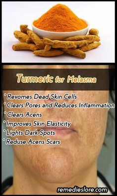 Important approaches and treatments to learn from Turmeric for Melasma Melasma i. Natural Treatments, Beauty Hacks Lips, Beauty Tips, Beauty Secrets, Beauty Products, Clear Pores, Upper Lip