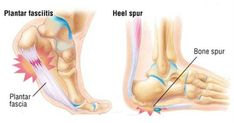 Plantar fasciitis (that second word pronounced fash-ee-eye-tis) is a condition in which you are experiencing pain in your plantar fascia, the tendon that connects your heel to your toes, which reveals itself in a variety of foot pains. report this ad Most notably, when you step on your foot after a night of rest and …