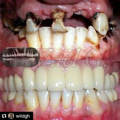 """167 Likes, 9 Comments - Implant Compare (@implantcompare) on Instagram: """"Great work by a new contributor! Cases like this can completely changes a person's quality of life.…"""""""