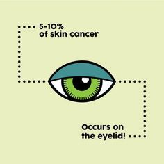 Eyelids are HIGHLY susceptible to skin cancer Protect your eyes by wearing sunglasses or applying sunscreen that is especially designed for the sensitive skin around the. Dry Eyes Causes, Eye Facts, Eye Infections, Eye Exam, Healthy Eyes, Eyes Problems, Eye Doctor, Eye Strain, Eyes