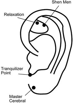Fig. 5. Auricular acupuncture points used for relaxation and intraoperative anesthetic reduction.