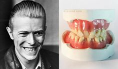 Today, we give you a handcrafted photorealistic sculpture of David Bowie's teeth.