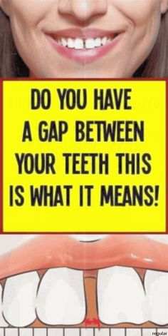 DO YOU HAVE A GAP BETWEEN YOUR TEETH? THIS IS WHAT IT MEANS!.. Health Articles, Health Tips, Ear Health, Health Benefits, Health And Nutrition, Health Fitness, Cumple Peppa Pig, Ways To Be Healthier, Health Planner