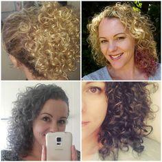 My extreme hair loss story