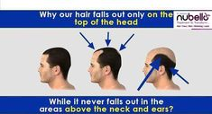 Why Do People Go Bald On The Top Of Their Head, But Not The Sides? The hair on the top of the head are structurally different from the ones on the side. When you start to get older, your body starts converting testosterone in your body to dihydrotestosterone (DHT) at a steadily increasing rate (until you hit your developmental peak, which for males is somewhere between late twenties to mid thirties). As we age, our hair follicles become more sensitive to DHT. Amount of DHT doesn't increase…