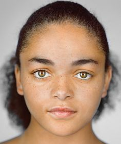 Imani Cornelius, 13, Shakopee, Minnesota. Self-ID: black and white   Census box checked: black   Imani needs a bone marrow transplant but a shortage of African American and multiracial donors has kept her waiting for two years, because matches rely on shared ancestry.
