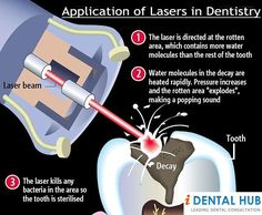 Lasers are increasingly being used in dentistry for various procedures. These are used in Root Canal Treatment, Sterlization in Endodontics, Apeiceotomy, Periodontics.