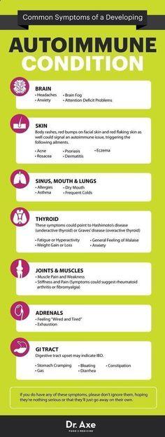 Arthritis Remedies Hands Natural Cures - Arthritis Remedies Hands Natural Cures - Autoimmune disease symptoms - Dr. Axe www.draxe.com #health #holistic #natural Arthritis Remedies Hands Natural Cures Arthritis Remedies Hands Natural Cures #arthritisremedies #naturalhealth #arthritisremedieshands