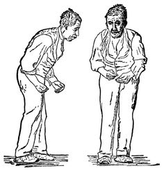 """""""Front and side views of a man portrayed to be suffering from Parkinson's disease. These are woodcut reproductions (of two collotypes from Paul de Saint-Leger's 1879 doctoral thesis, Paralysie agitante etc.) published in Gowers, William Richard (1886)."""" (Public domain via Wikimedia Commons.)"""