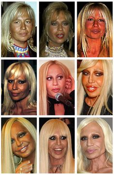 Bad Plastic Surgeries, Plastic Surgery Gone Wrong, Plastic Surgery Photos, Celebrity Plastic Surgery, Donatella Versace Before, Celebrities Before And After, Girl Celebrities, Without Makeup, Aging Gracefully