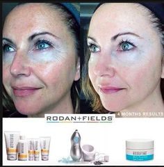 Rodan + Fields products, redefine, and reverse... love it. What will work for you, try our solution tool https://generousgems.myrandf.com/Pages/OurProducts/GetAdvice/SolutionsTool#