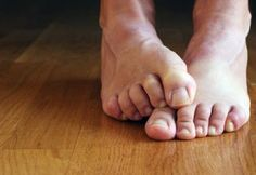 Watch This Video Mind Blowing Home Remedies for Toenail Fungus that Really Work Ideas. Astonishing Home Remedies for Toenail Fungus that Really Work Ideas. Toenail Fungus Remedies, Toenail Fungus Treatment, Foot Remedies, Natural Remedies, Foot Odor, Young Living Oils, Natural Solutions, Feet Care, Toe Nails