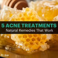 5 Natural Acne Treatments That Work Fast - DrAxe.com