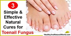 Natural Cure for Toenail Fungus