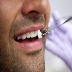 This article is written by a famous cosmetic dentist Calabasas. He has several years of experience of working with crowns, veneers and implants Calabasas and has written several articles on cosmetic dentistry.