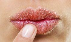 Libelle - tip tegen gebarsten lippen: plakband!