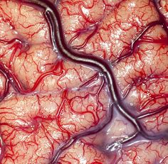 Incredible close-up shot of living human brain